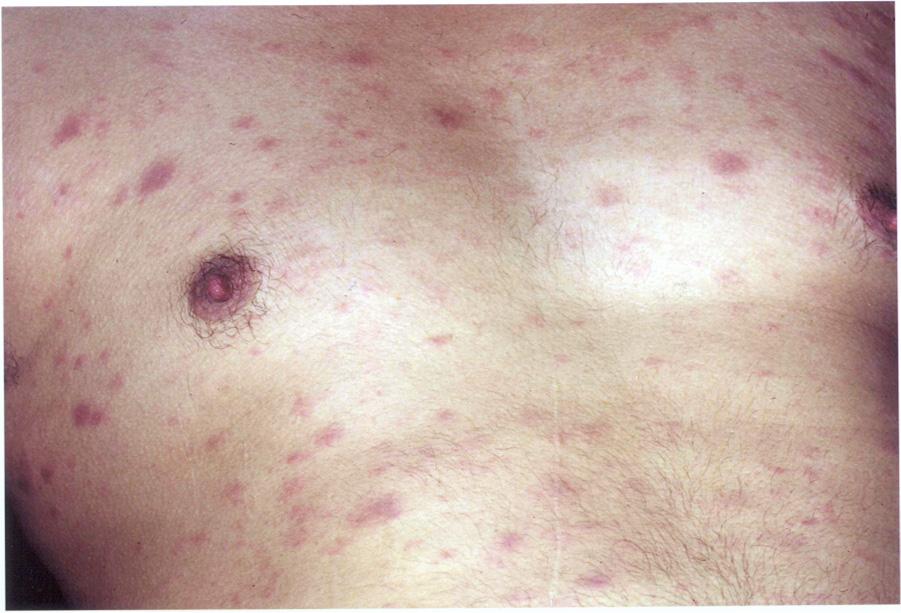 phát ban, hiv,aids, triệu chứng